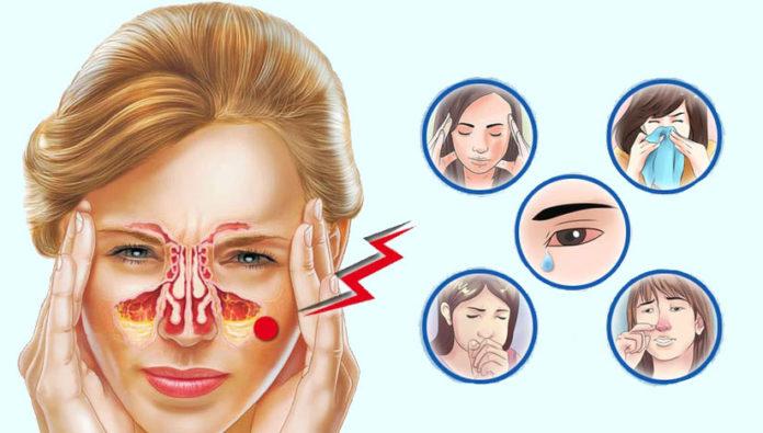 Как избавиться от заложенности носа и очистить нос от слизи в домашних условиях