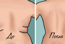 как убрать жировые складки на спине и боках